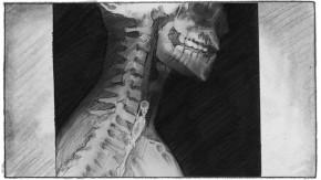 04 röntgenbild